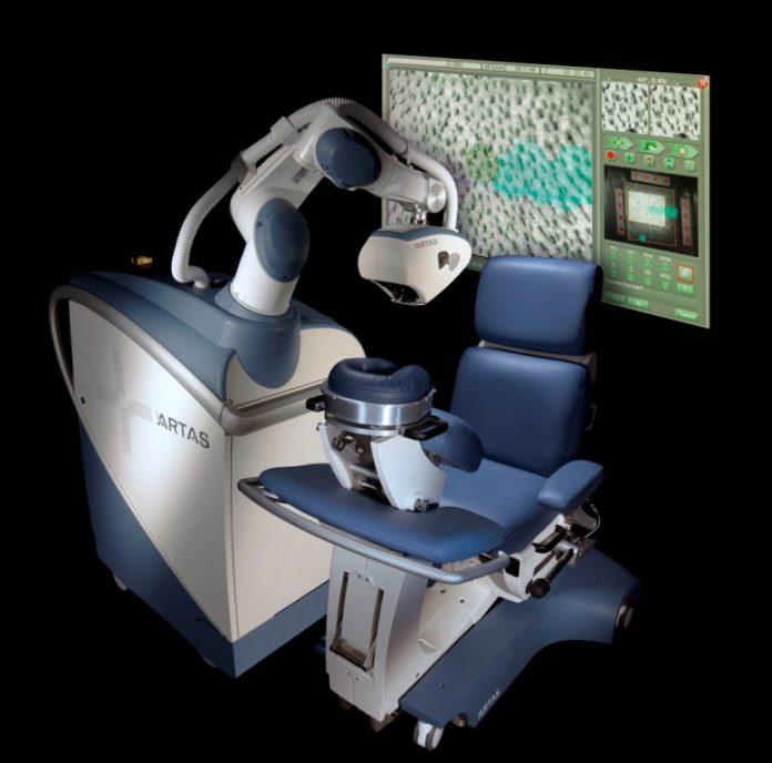 Robot ARTAS do przeszczepu włosów